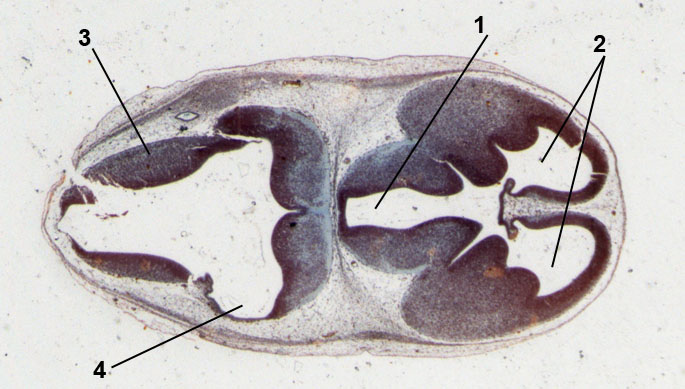 embryo of mouse; 13 days old