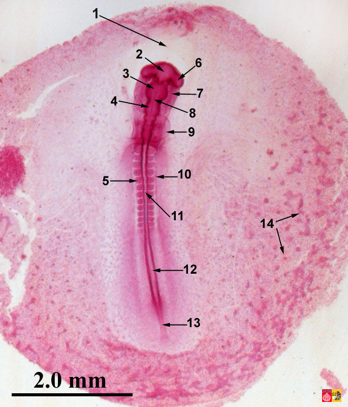 embryology of chicken 33 hours