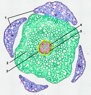 cross-section Lycopodium stem