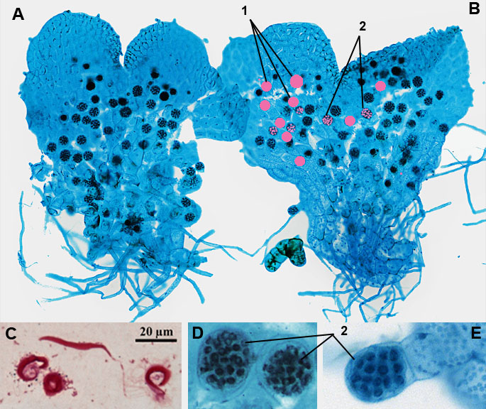 prothallium of true ferns, antheridia, sperm cells