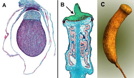 Capsule of A a Liverwort and B a true moss, C seta, capsule and peritome in Undulate atrichum moss (<em>Atrichum undulata</em>)